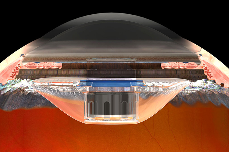 an image of CentraSight Implantable Macular Telescope